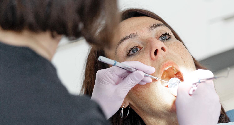 Cuándo se hace una endodoncia